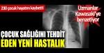 Çocuk sağlığını tehdit eden yeni hastalık: 230 çocuk hayatını kaybetti