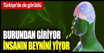 Burundan giriyor insanın beynini yiyor: Türkiye'de de görüldü