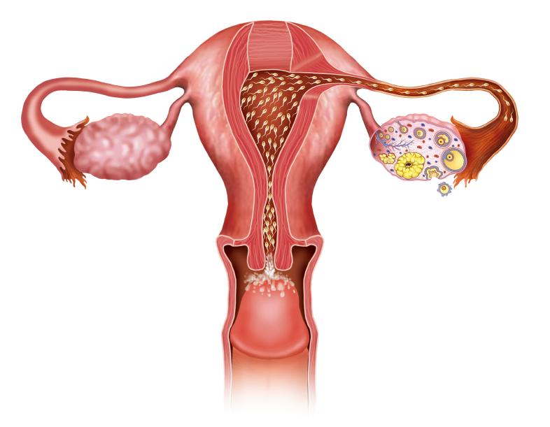 cisto nanay ovario pode hallar hemorragia