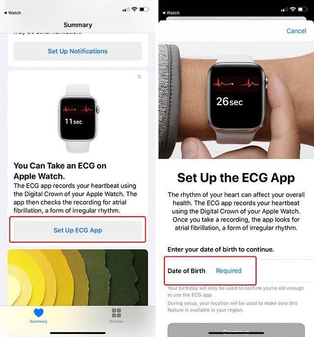 Set up apple watch ecg health app