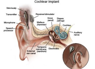 quality of life hearing loss cochlear implants elderly patients cochlear implantation