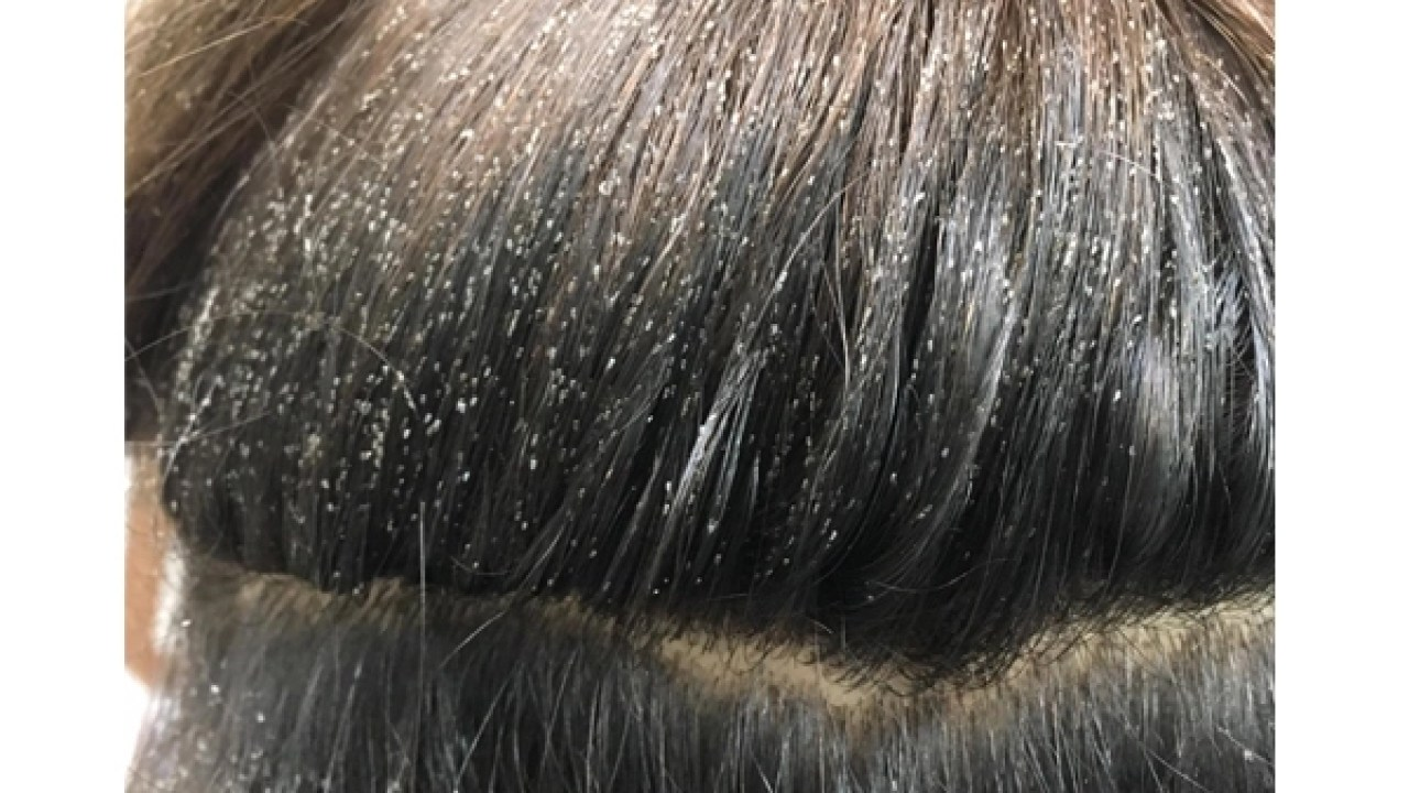 Here Are 11 Myths About Lice That Should Know About