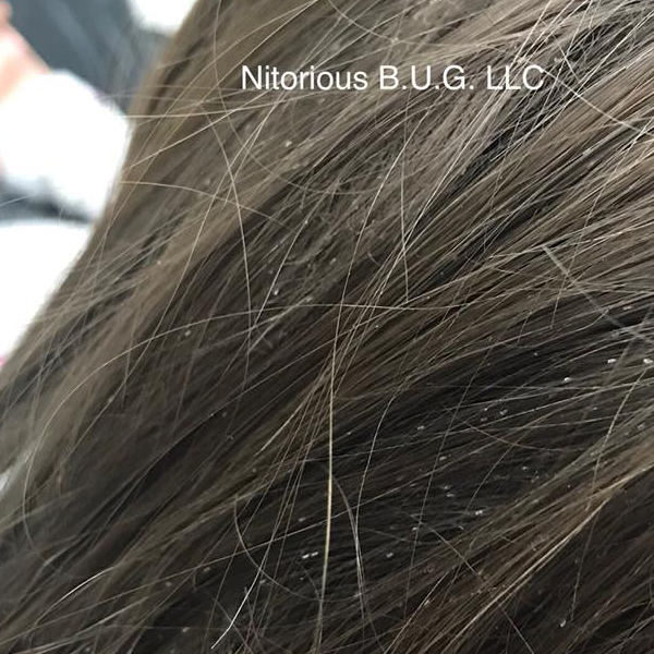 lice and/or nits on scalp and hair
