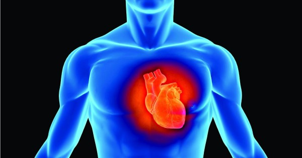 Image result for myocardial infarction pictures