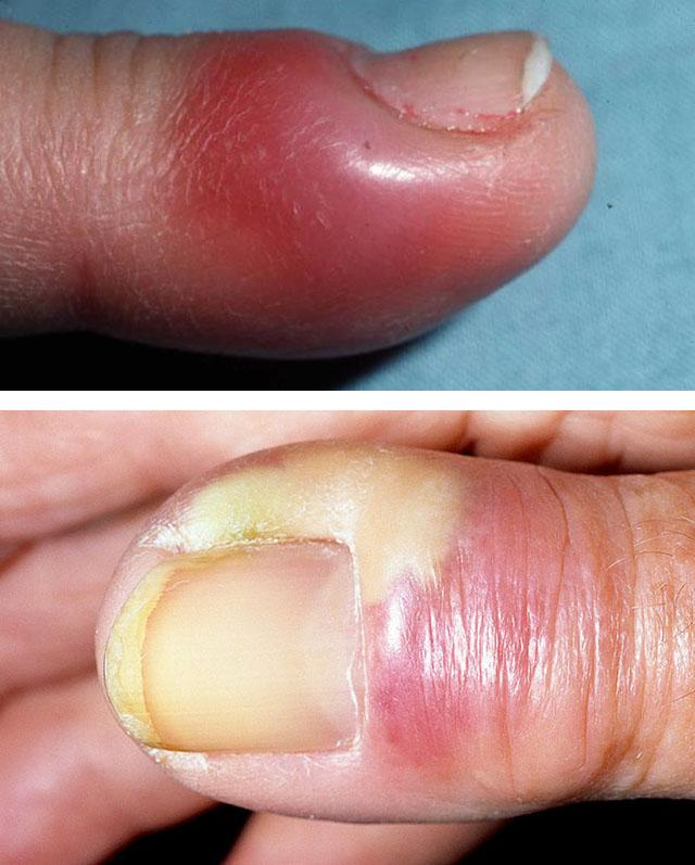 How to treat panaritium at home  Manifestations of