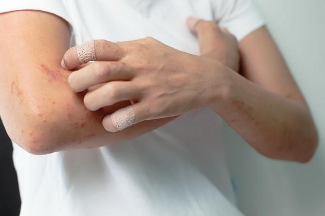 Ограниченный нейродермит мкб 10. Нейродермит – современная классификация и современный подход в лечении заболевания