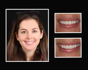 Ami before and after smile makeover in Long Island NY