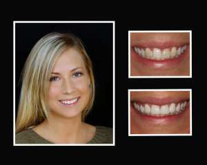 Christina before and after restorative dentist