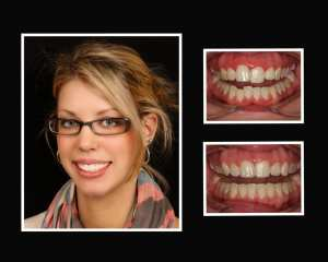 Janelle before and after cosmetic dentist