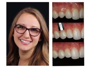 Jen before and after cosmetic dentist