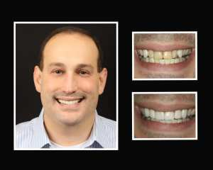 Tom before and after restorative dentistry