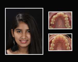 Conchita before and after orthodontics in Roslyn NY