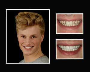 J before and after porcelain veneers in Roslyn NY