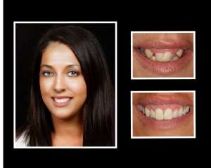 Doreen before and after orthodontics in Roslyn NY