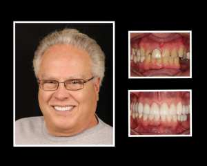 John before and after dental implants in Roslyn NY