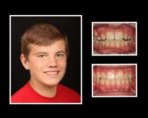 Jordan before and after orthodontics in Roslyn NY