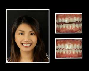 Lok before and after orthodontics in Roslyn NY