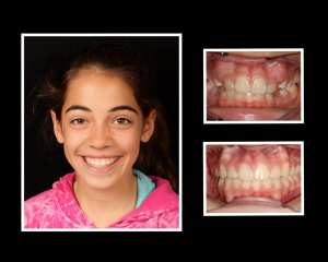 Maddie before and after orthodontics in Roslyn NY