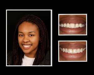 Nonia before and after dental implants in Roslyn NY