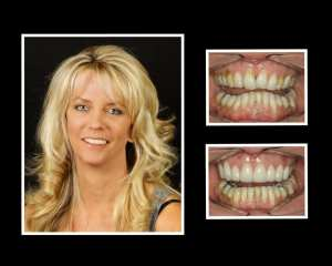 Sue before and after porcelain veneers in Roslyn NY