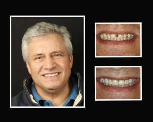 Van before and after porcelain veneers in Roslyn NY