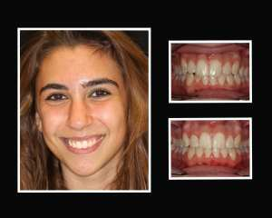 Brianna before and after restorative dentistry