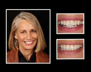 before and after restorative dentistry in Long Island