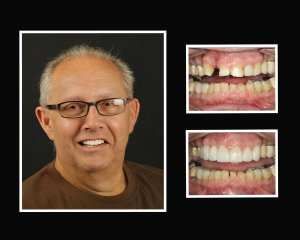JJ before and after teeth implants in Long Island NY