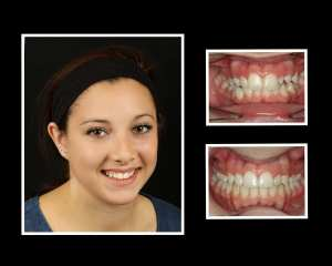 Michelle before and after orthodontics in Roslyn NY