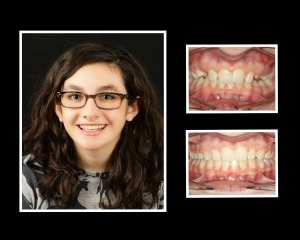 Natalie before and after orthodontics in Roslyn NY