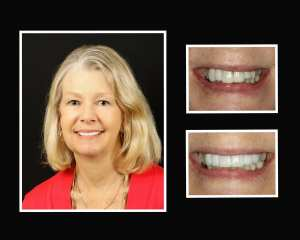 April before and after teeth implants in Long Island NY
