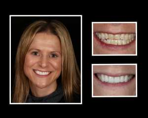 Cheryl before and after cosmetic dentistry