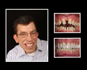 Chris before and after teeth implants in Long Island NY