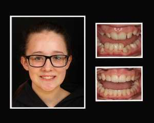Devon before and after restorative dentistry