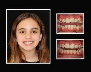 Elle before and after restorative dentistry