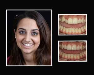 Katie before and after orthodontics in Long Island