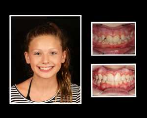 Paige before and after orthodontics in Roslyn NY