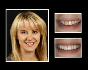 Tatyana before and after cosmetic dentistry