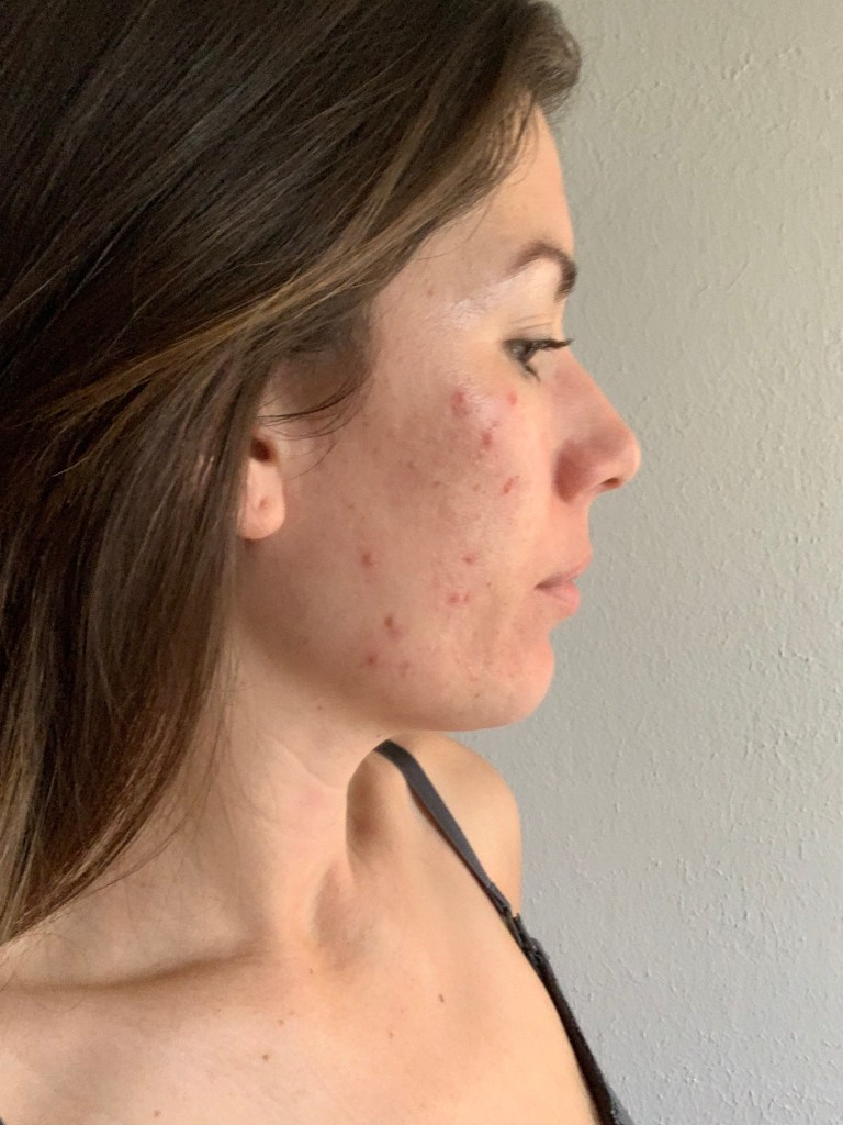 Hormonal Adult Acne