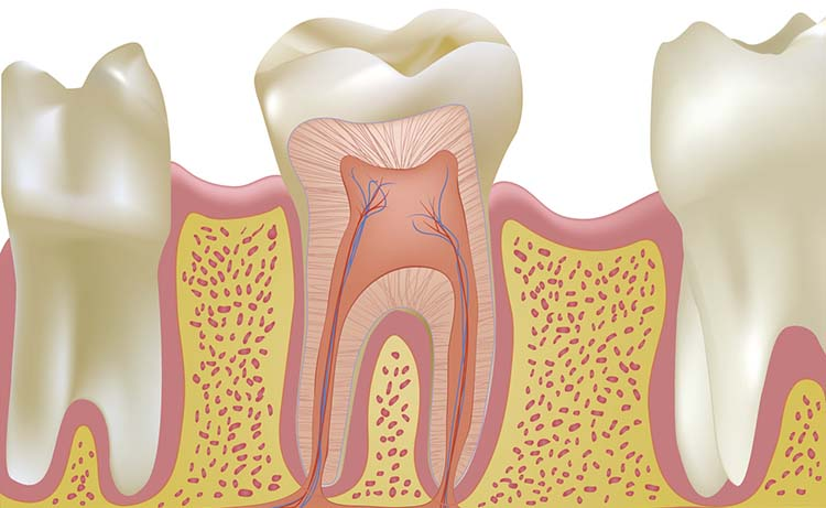 Non Surgical Root Canal Therapy Treatment | Belleview Dental Clinic