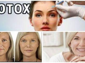 Cirugia con Botox