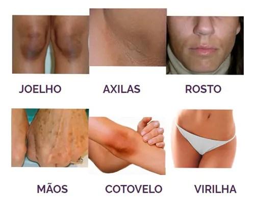 Lumiclear funciona clareando a pele em qualquer parte do corpo