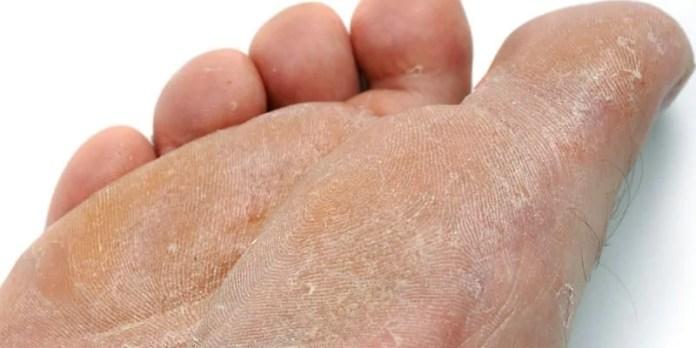Pele entre os dedos