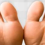 Pele entre os dedos dos pés a sair – Causas e tratamentos