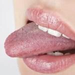 Porque minha língua está sangrando? – O que pode ser?