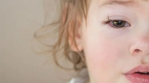 conjuntivite-1 Conjuntivite em crianças - Como tratar?