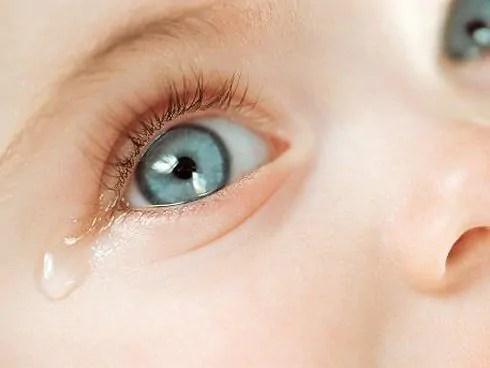 conjuntivite Conjuntivite em crianças - Como tratar?