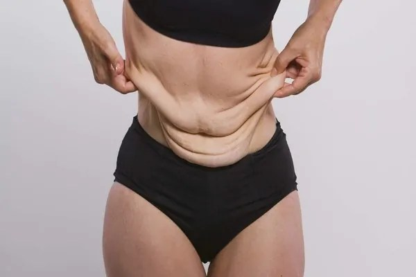 Dieta para emagrecer sem fazer exercícios
