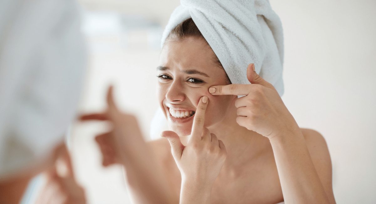 acne and blackheads