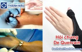 Cách điều trị hội chứng De Quervain  Chuyên khoa cơ xương khớp – Bệnh Viện Thánh Mẫu cach dieu tri hoi chung de quervain mo viem gan co tay de quervain